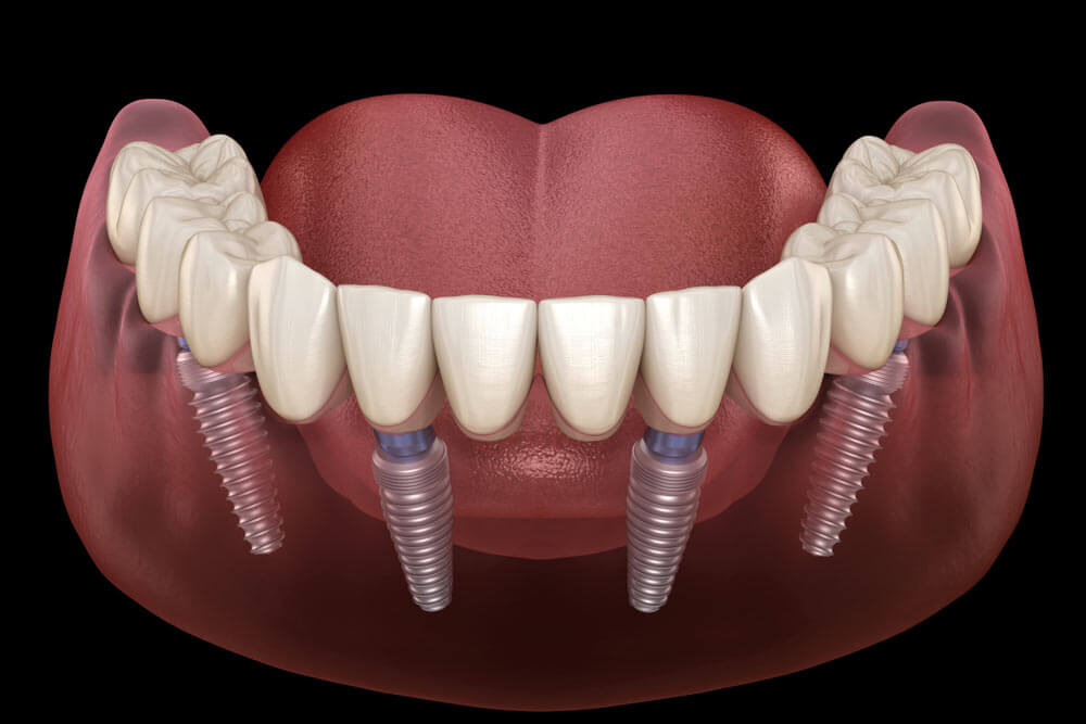 All on 4 implant supported dentures showing the concept of Implants