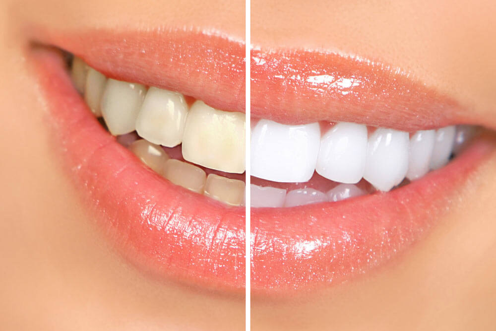 Teeth whitening showing the concept of Cosmetic Dentistry